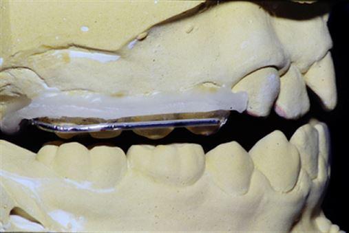 Disjuntor com cobertura oclusal: confecção laboratorial e aplicação clínica