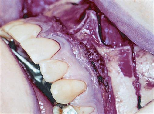 Avaliação longitudinal das alterações transversais após expansão rápida cirurgicamente assistida da maxila