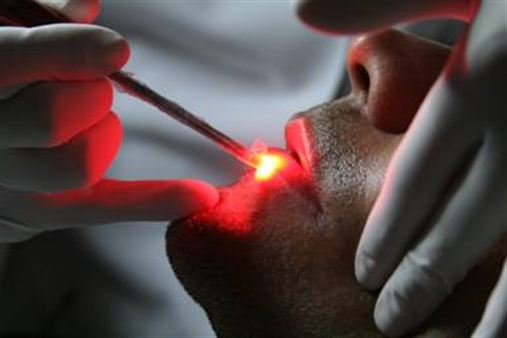 Laserterapia alivia dores e aftas na boca de pacientes oncológicos