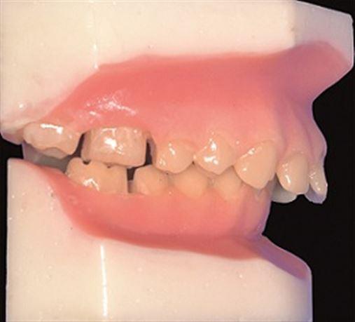Tratamento da má oclusão de Classe II com o aparelho MARA (Mandibular Anterior Repositioning Appliance)