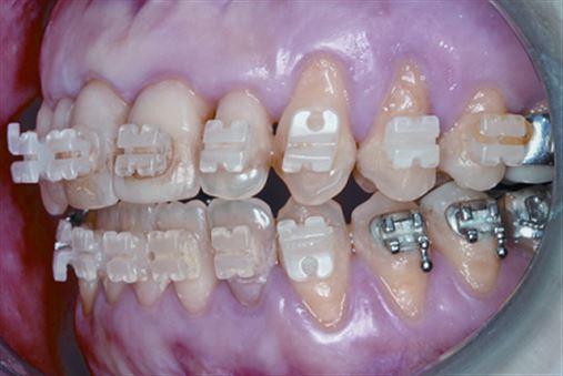 Tratamento orto-cirúrgico de mordida aberta esquelética associada a múltiplas recessões periodontais e abfrações – relato de caso