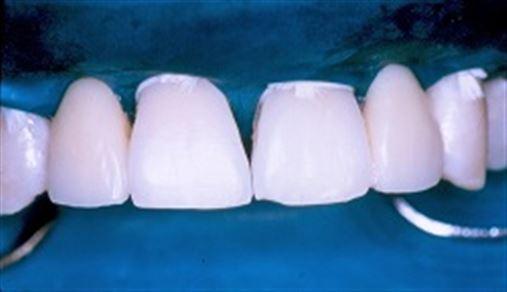 Reabilitação ortodôntica e protética na agenesia de incisivos laterais superiores com prótese adesiva de fibra de reforço associada ao cerômero – relato de caso