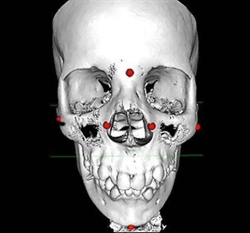 Avaliação das estruturas faciais pré e pós-disjunção maxilar por meio de tomografia computadorizada