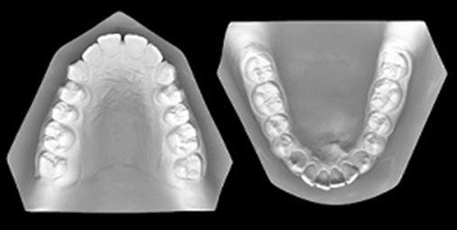Tratamento ortodôntico associado à discrepância transversal maxilar e dentária anterior – relato de caso