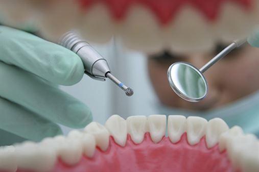 Estudo revela que cáries dentárias podem ser tratadas sem obturação