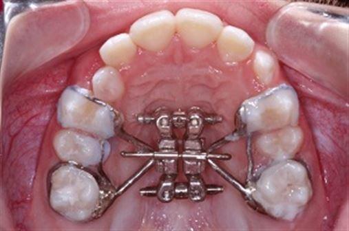 Expansor maxilar diferencial como uma alternativa clínica para as correções transversais: relato de caso clínico