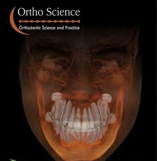 Avaliação in vitro da dureza, da resistência adesiva e do índice de adesivo remanescente de três resinas ortodônticas