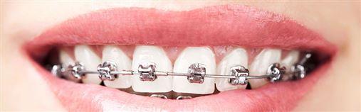 Uso de aparelho ortodôntico irregular pode causar perda de dentes, alerta CRO-AM