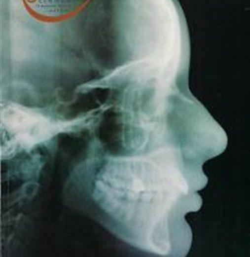 Alterações cefalométricas dentoesqueléticas de pacientes…