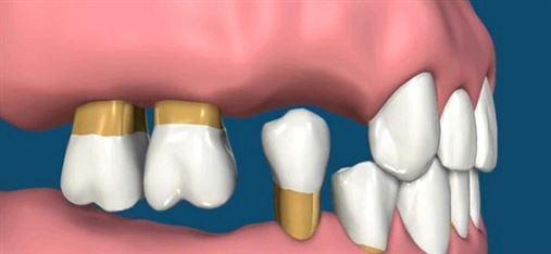 Saúde bucal deficitária pode indicar risco de diabetes