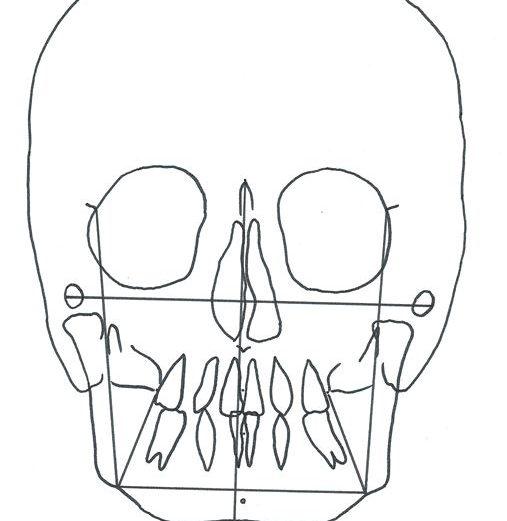 Expansão maxilar não cirúrgica em adultos: relato de caso