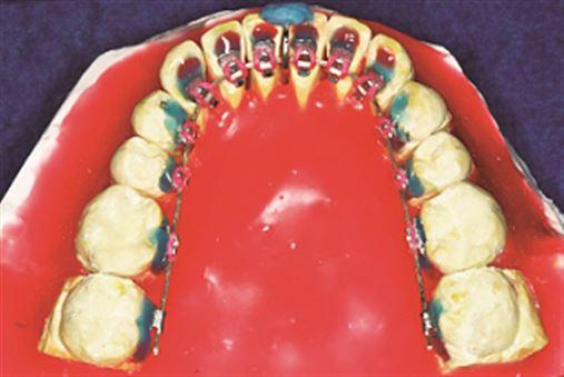 Tratamento da Classe II assimétrica – uma abordagem em Ortodontia Lingual