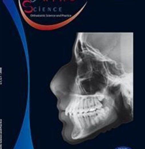 Agenesia dental do incisivo lateral superior