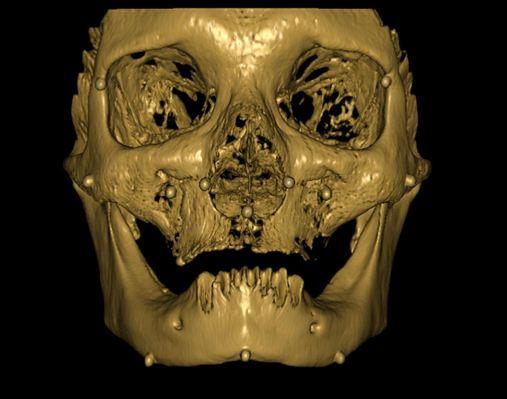 Estudo comparativo das dimensões faciais utilizando radiografia frontal (PA) e tomografia computadorizada cone beam