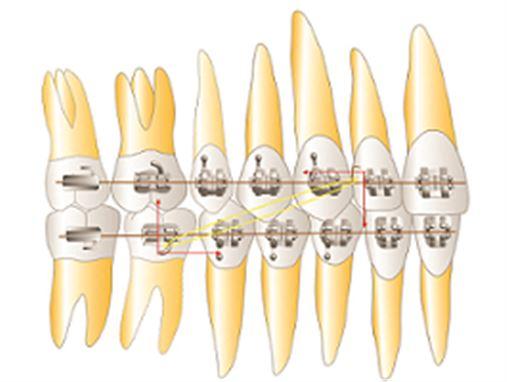 Tratamento das más oclusões sagitais com a utilização de elásticos intermaxilares