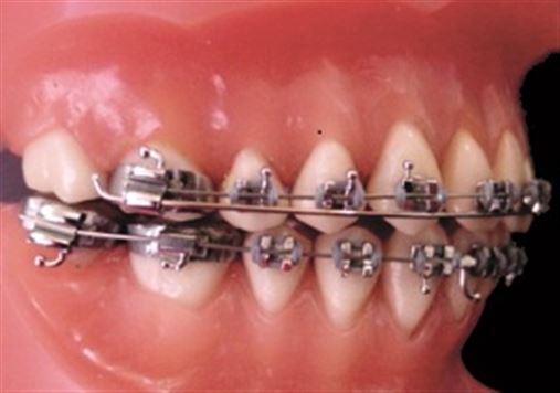 Tratamento da Classe III em adultos sem cirurgia ortognática