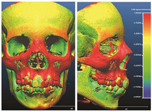 A tomografia computadorizada no diagnóstico e análise de pacientes submetidos à disjunção maxilar – revisão de literatura e relato de caso