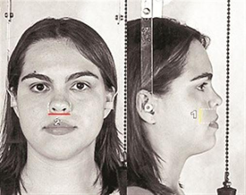 Estudo da proporção áurea em fotografias faciais de indivíduos com oclusão normal