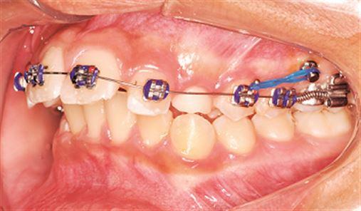 Diferentes sistemas de distalização de molares utilizando ancoragem esquelética indireta – relato de casos