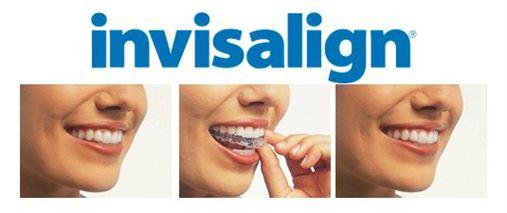 Invisalign é alvo de estudos no Departamento de Ortodontia da USP