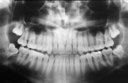 Tratamento da Classe III: cirurgia ou camuflagem?