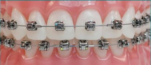 Tratamento ortodôntico torna a boca saudável