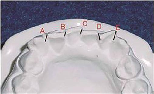 Alterações dentoesqueléticas e tegumentares decorrentes do alinhamento e nivelamento com aparelhos autoligáveis