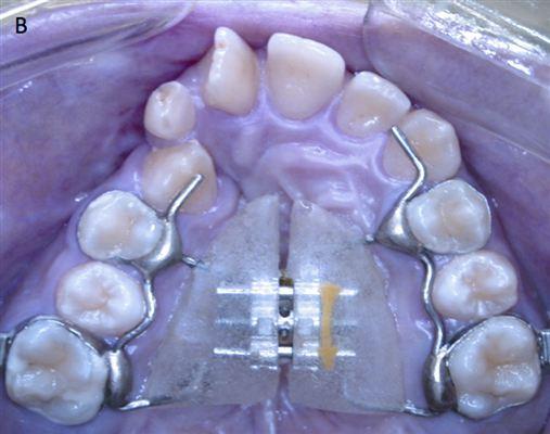 Alterações transversais produzidas pela expansão rápida maxilar com diferentes parafusos expansores em pacientes com fissura de lábio e palato