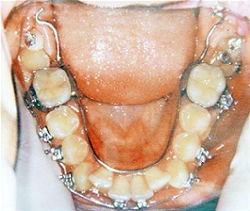 Desimpactação de molar inferior usando arco lingual soldado como ancoragem