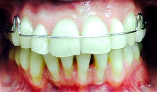 Tratamento ortodôntico de pacientes adultos com periodonto reduzido – cuidados e limitações