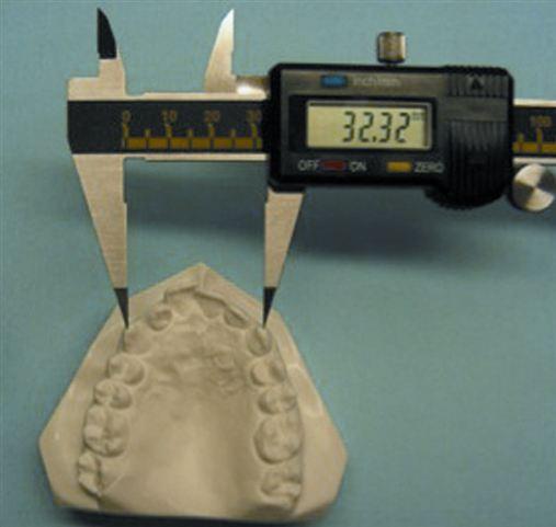 Alterações dentárias transversais em pacientes submetidos à expansão rápida da maxila com ancoragem esquelética