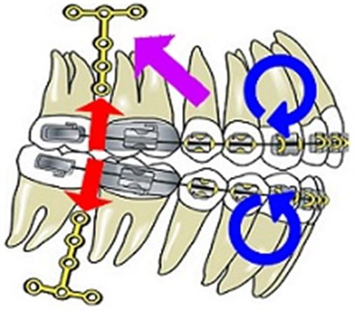 Tratamento da mordida aberta anterior com miniplacas