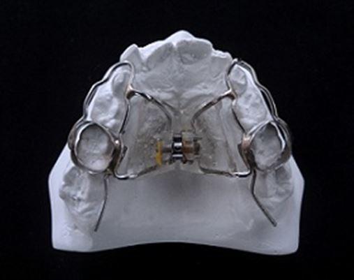 Expansão rápida da maxila na dentadura mista ancorada em dentes decíduos – relato de caso