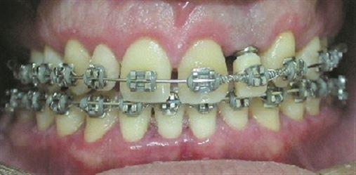 Complementação da cirurgia gengival ressectiva pela aplicação da toxina botulínica no manejo do sorriso gengival em  paciente ortodôntico