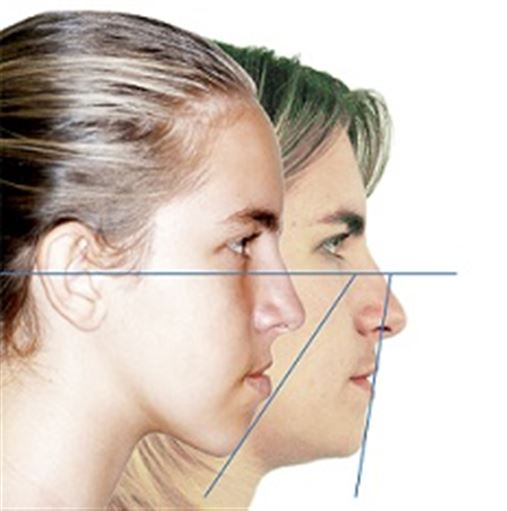 Abordagem ortodôntica na correção da Classe III com mordida aberta anterior com osteotomia sagital mandibular e  mentoplastia – caso clínico