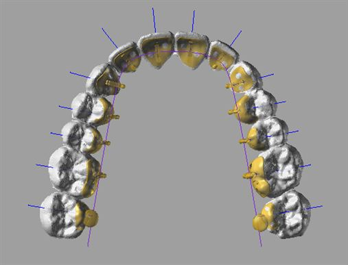 Lingual Jet: opção para a Ortodontia lingual