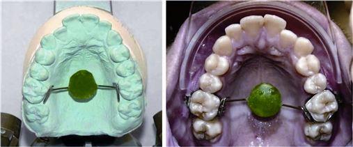 Correção de mordida aberta anterior na dentição permanente – relato de caso