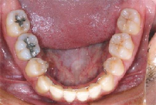 Tratamento ortodôntico compensatório da má oclusão de Classe III esquelética