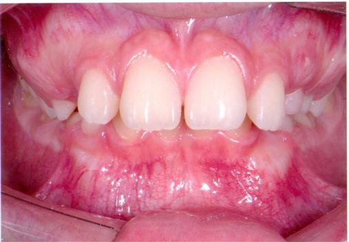 Efeitos do aparelho de Herbst no tratamento precoce da má oclusão. Classe II de Angle