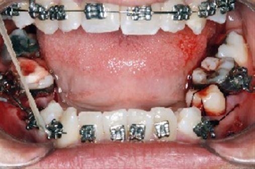 Tratamento ortodôntico com autotransplante dentário em paciente com fissura palatina