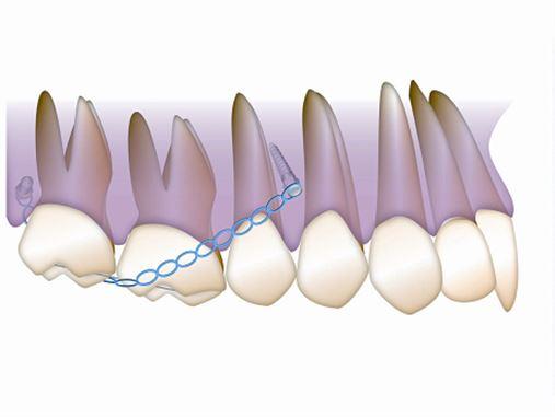 Recuperação do espaço protético por meio de intrusão de 1º e 2º molares superiores com o uso de mini-implantes