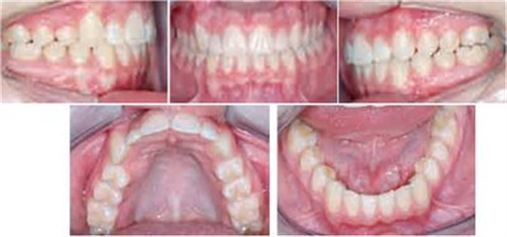 Transposições dentárias – revisão de literatura