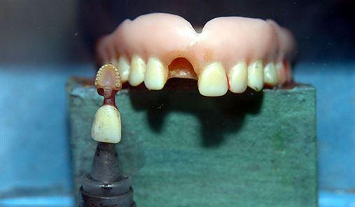 Falta de um único dente pode trazer riscos à saúde geral do organismo