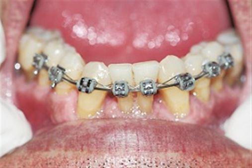 Ortodontia osteogênica periodontal acelerada associada aos sistemas autoligáveis – relato de caso