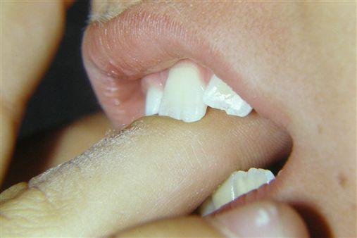 O hábito de sucção do dedo anelar …..
