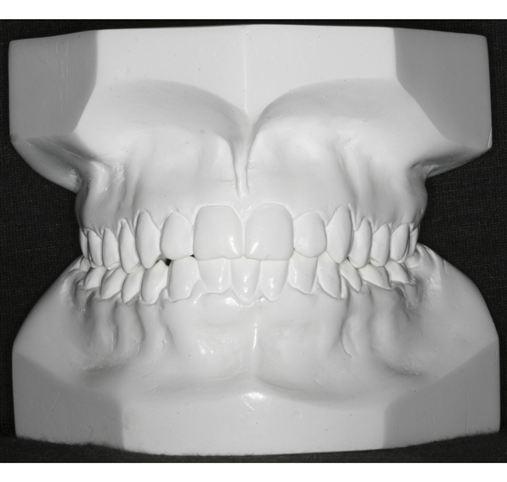 Má oclusão Classe III de Angle tratada com extrações de dentes permanentes: relato de caso