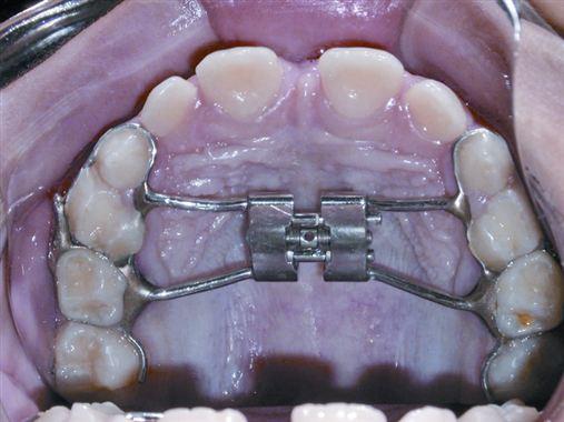 Bimax III – uma alternativa para o tratamento ou contenção ativa nos casos de Classe III precoce