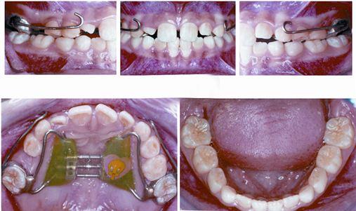 Tração reversa da maxila associada à disjunção palatal