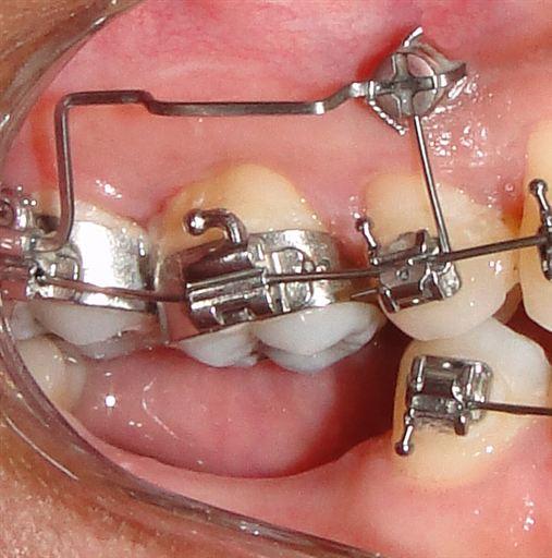 Intrusão de molar utilizando mini-implante com cabeça de bráquete: relato de caso.