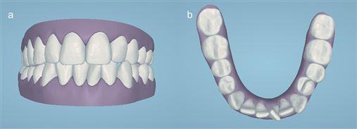 Plano de tratamento virtual na Ortodontia